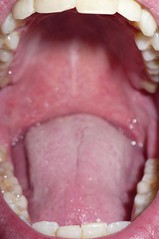 black holes in tonsils - photo #11