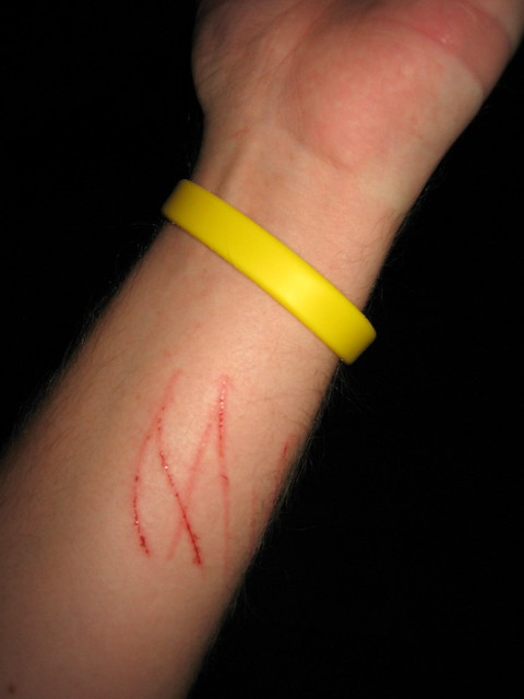 Image Result For A Cat Scratched