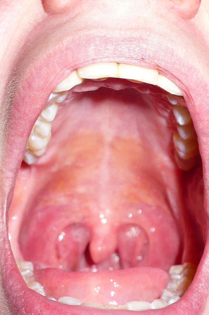 mouth holes