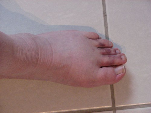 Sprain, at just over 2 weeks