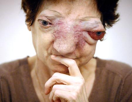 disfigured disease soundcloud er