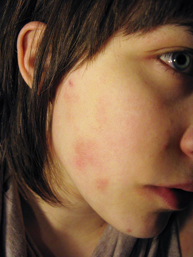 pimples all around eczema