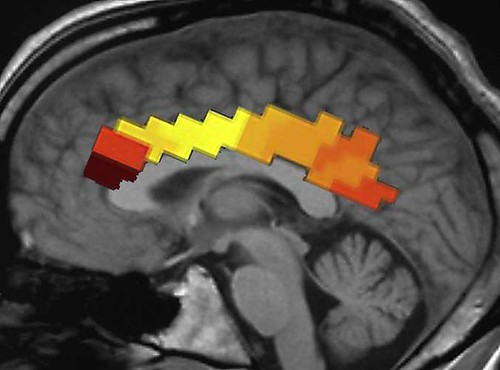 Figure 2. Cingulate cortex response following submission of own decision for age and IQ controls
