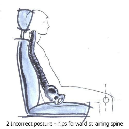 Incorrect sitting posture - slouching