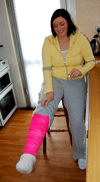 Her Full Leg Cast http://www.flickr.com/photos/clairemiddsy/2464251762/