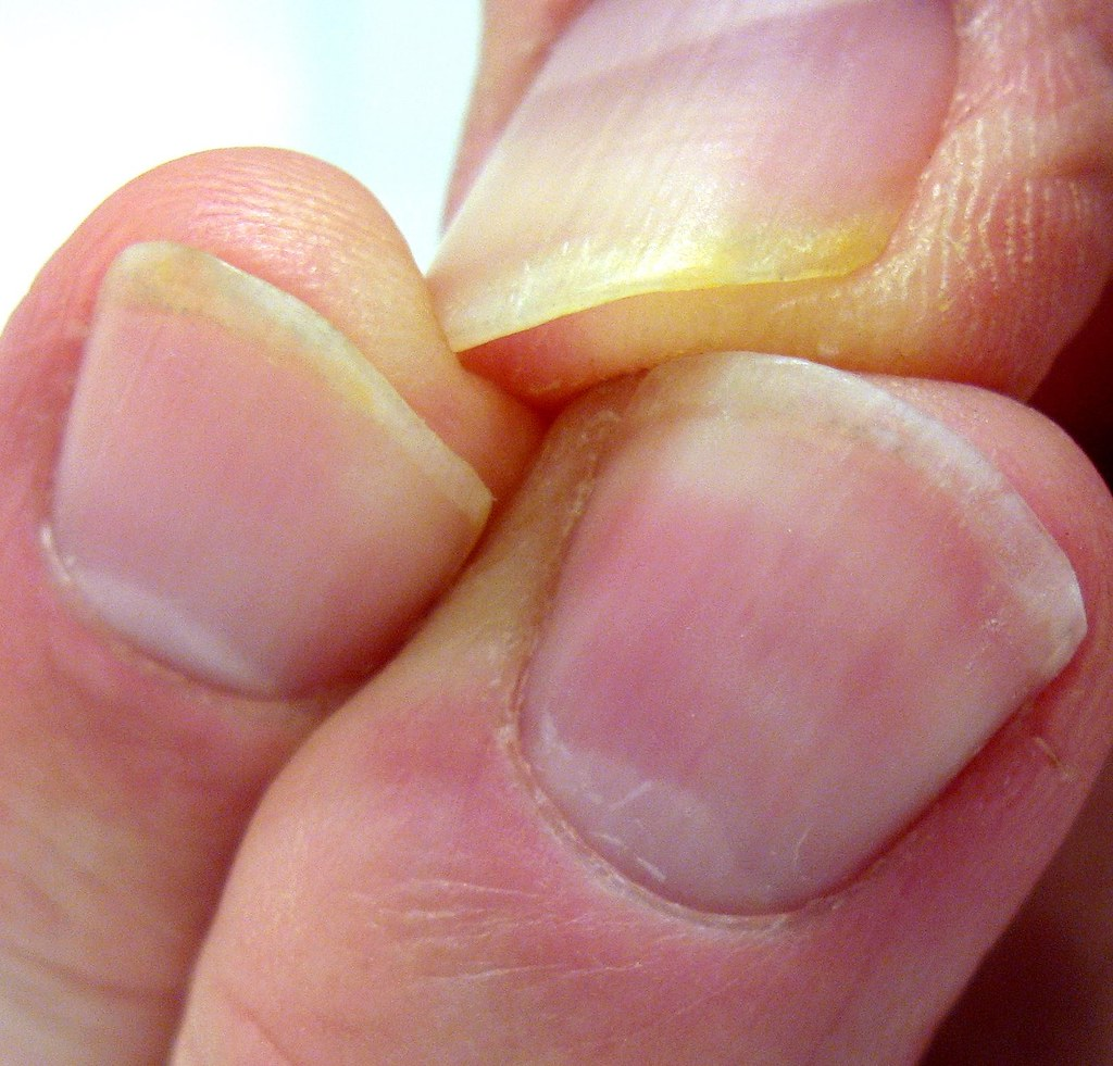 The Effects of Biting Your Nails