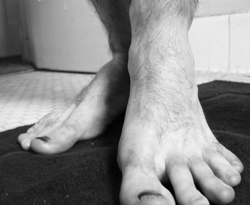 foot pain between toes