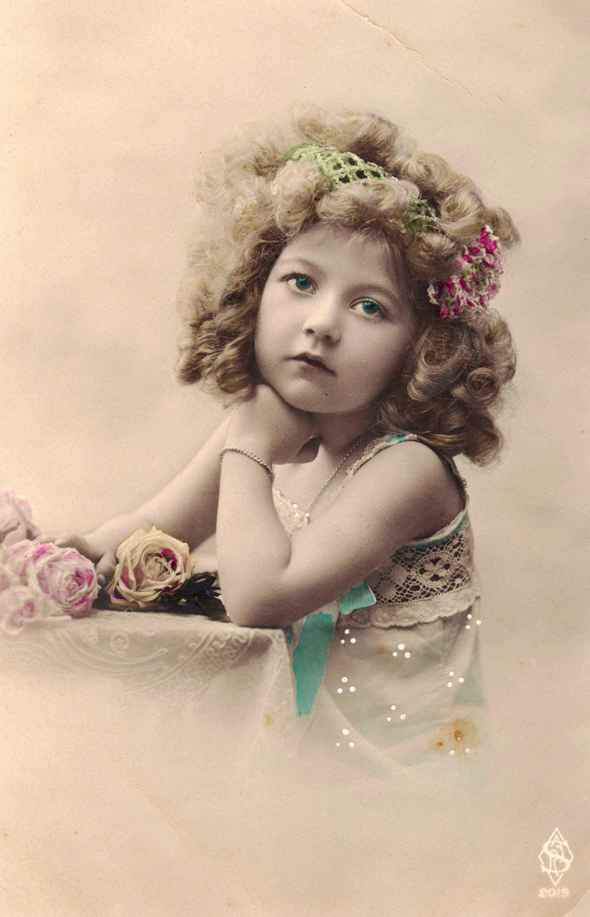 Здоровое горло ребенка как выглядит фото