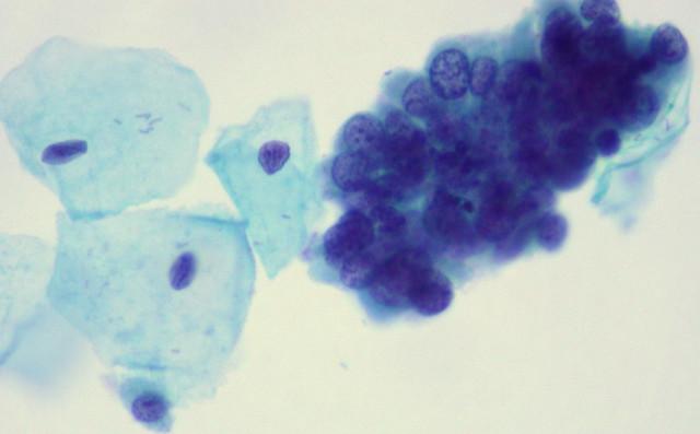 Thinprep Pap Test Pap Thinprep Adenocarcinoma