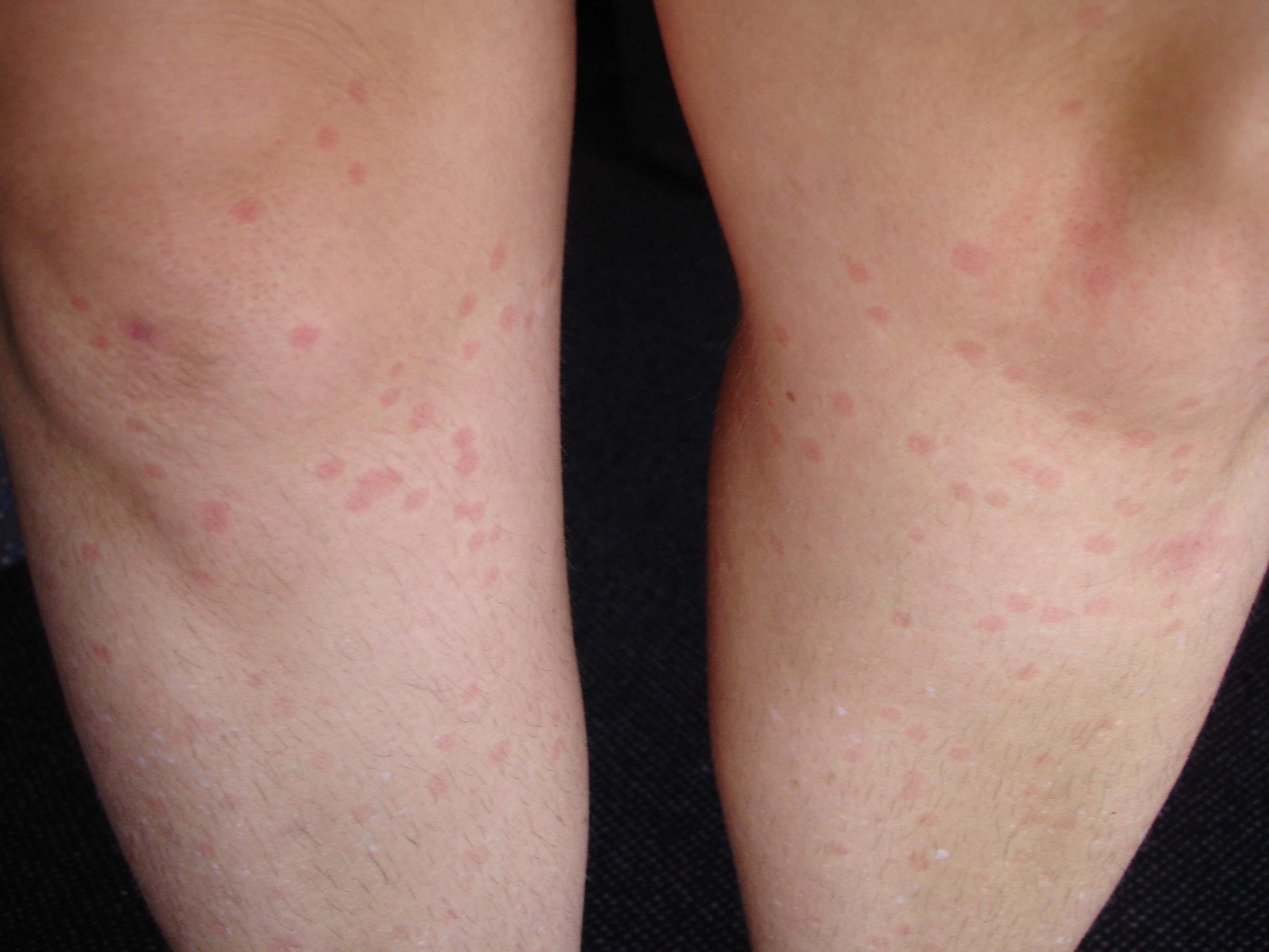 Flea Bites : Symptoms and Treatments - Health Line