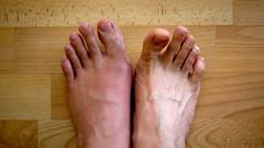 Gout Y U NO GO AWAY?