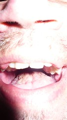 black holes in tonsils - photo #44