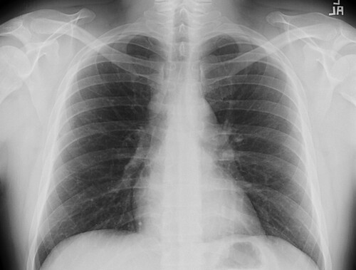 Chest X-Ray, crime fighter