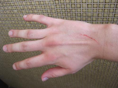 A scratch.