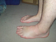 Another View Of My Swollen foot.
