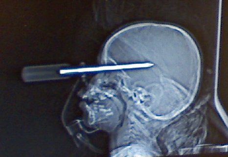 Screwdriver In Girl's Head X-Ray