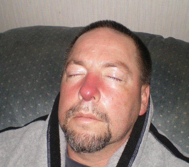My husband and his red nose we thought he had mrsa at the time and