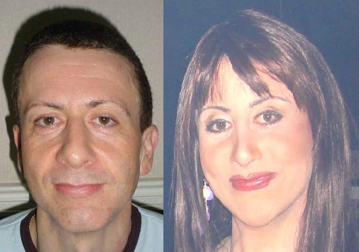 Results Of Facial Feminisation Surgery  Flickr - Photo -1260