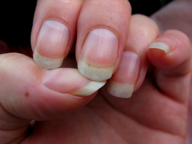 What I Learned about the Freckle in my Palm - The ...