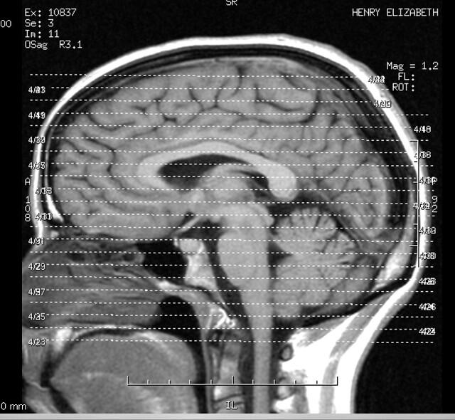 The brain can predict the future