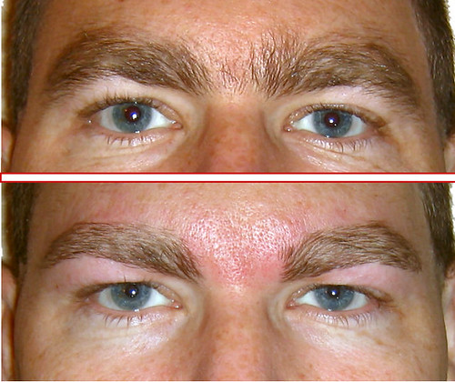 Eyebrows Before Amp After Bellaluce