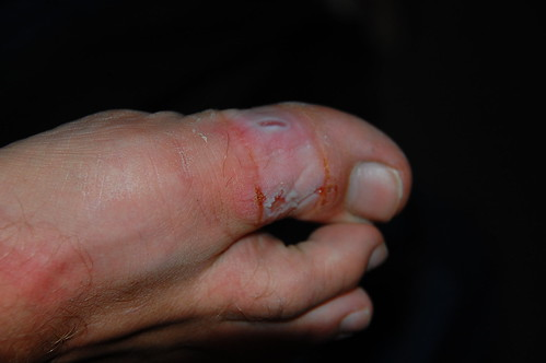 Foot injury while traveling