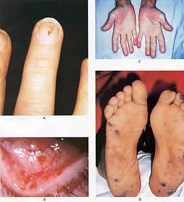 Congenital syphilis: MedlinePlus Medical Encyclopedia