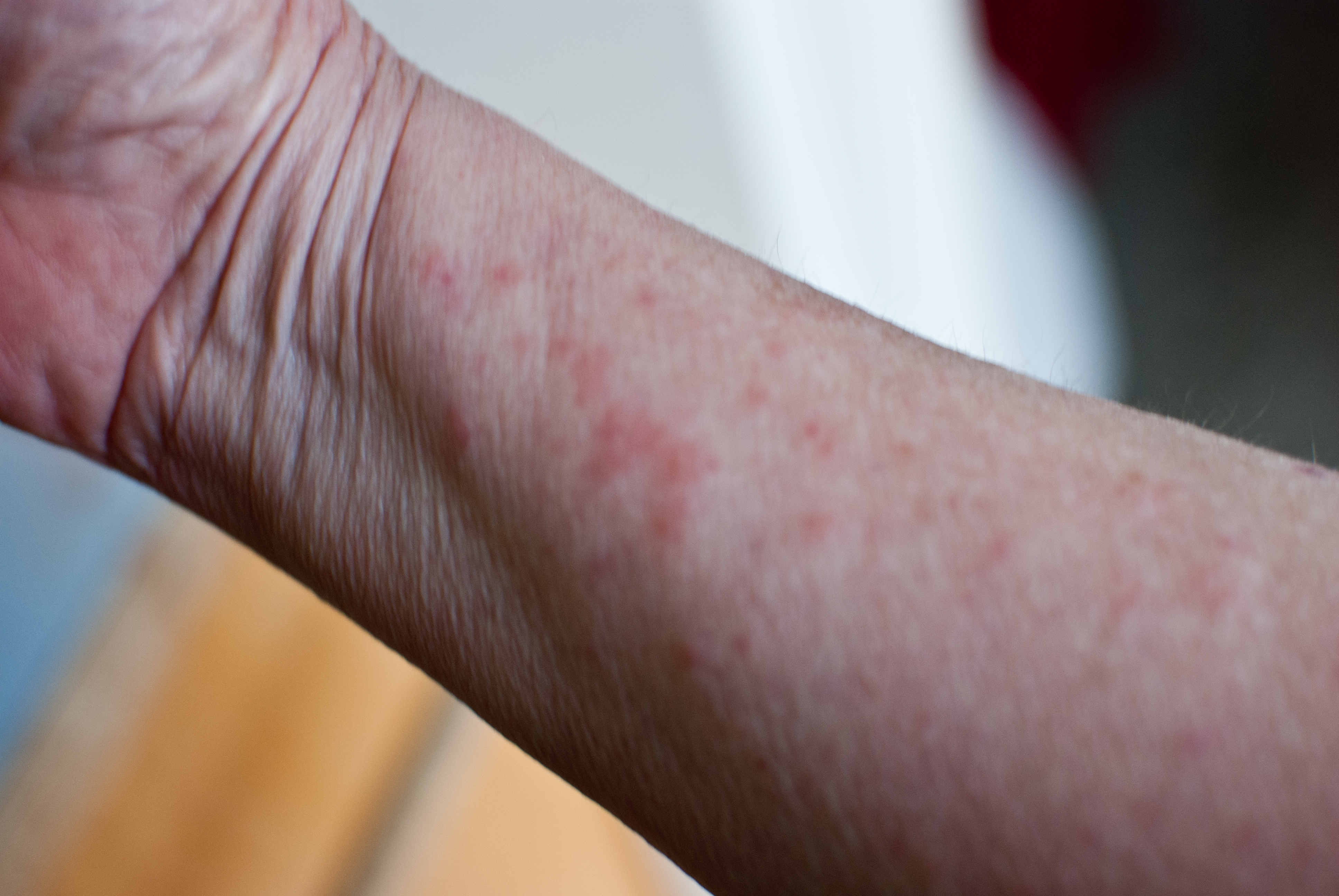 Poison ivy, swollen hands and arms? | Yahoo Answers