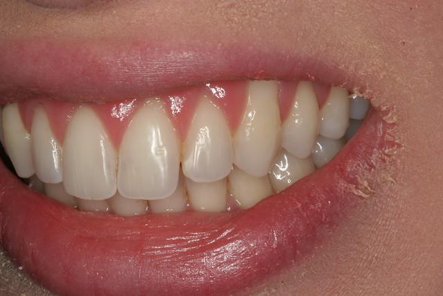 Gum Graft Cost Teeth After Gum Graft