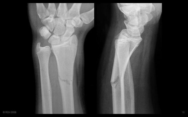 ring of bone xr2 radius ulna distal this is the ulnar