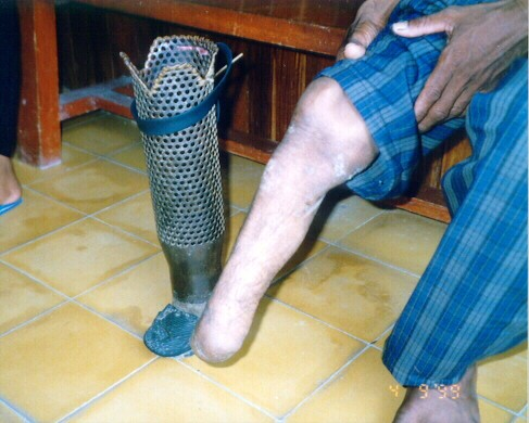 A home-made prosthetic limb
