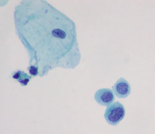 Thinprep Pap Test Pap Thinprep Hsil