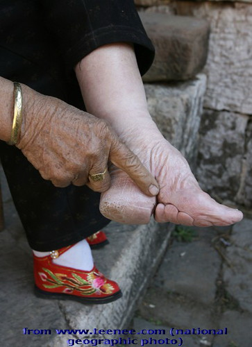 Foot-binding of chinese tradition in the past2