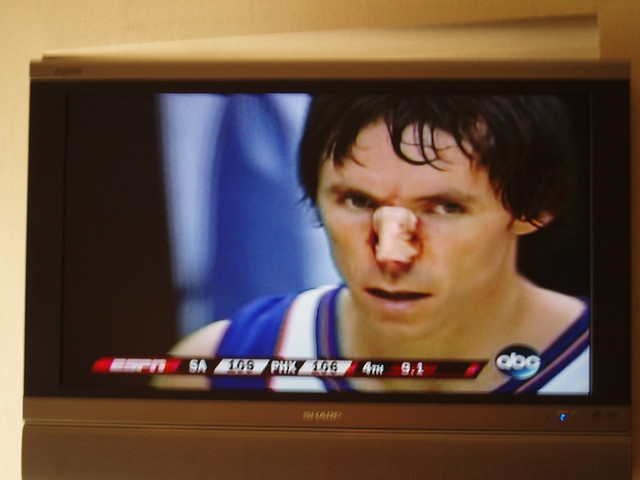 Steve Nash, with bloody nose | Flickr - Photo Sharing!