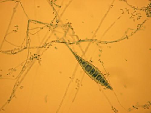 Microsporum canis