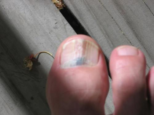 bruised toe nail