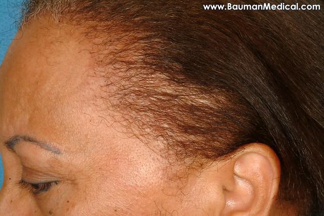 how to grow hair back near temples