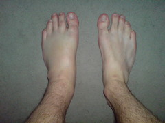 Torn Ligaments Are So Much Fun...