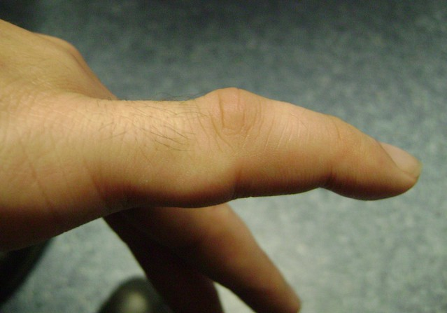 how to tell if thumb is dislocated