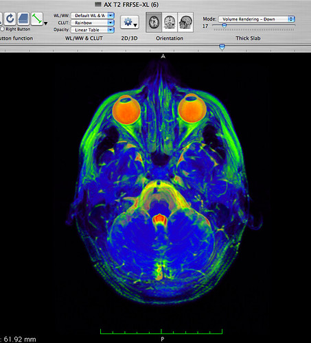 brain mri: rainbow-eyeballs