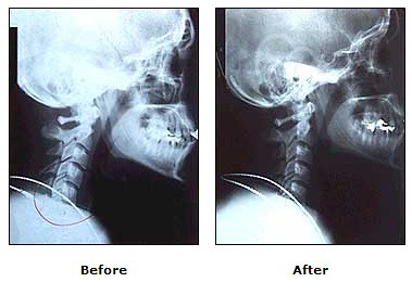 Before and after head alignment treatment