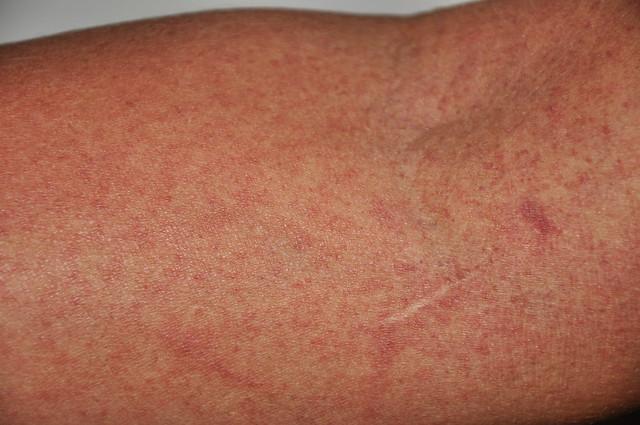 Dengue - petéquias   veja também: http://www.flickr.com/photos/gilbertopalma/5357860693/
