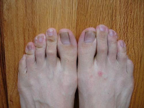 what my feet looked like after the Portland Marathon
