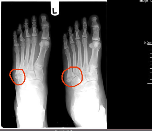 Can A Twisted Ankle Break A Bone In My Foot