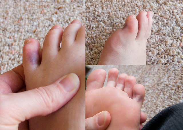 how to tell if your toe is broken or fractured