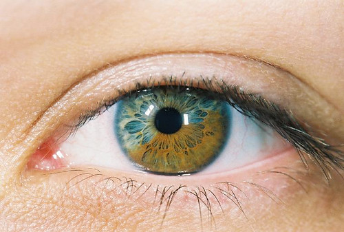 macro eye oldscan jalene heterochromia sectoralheterochromia 4faveswith98views 11faveswith1414views