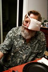 chips and his post surgery bandaged eye    MG 9899