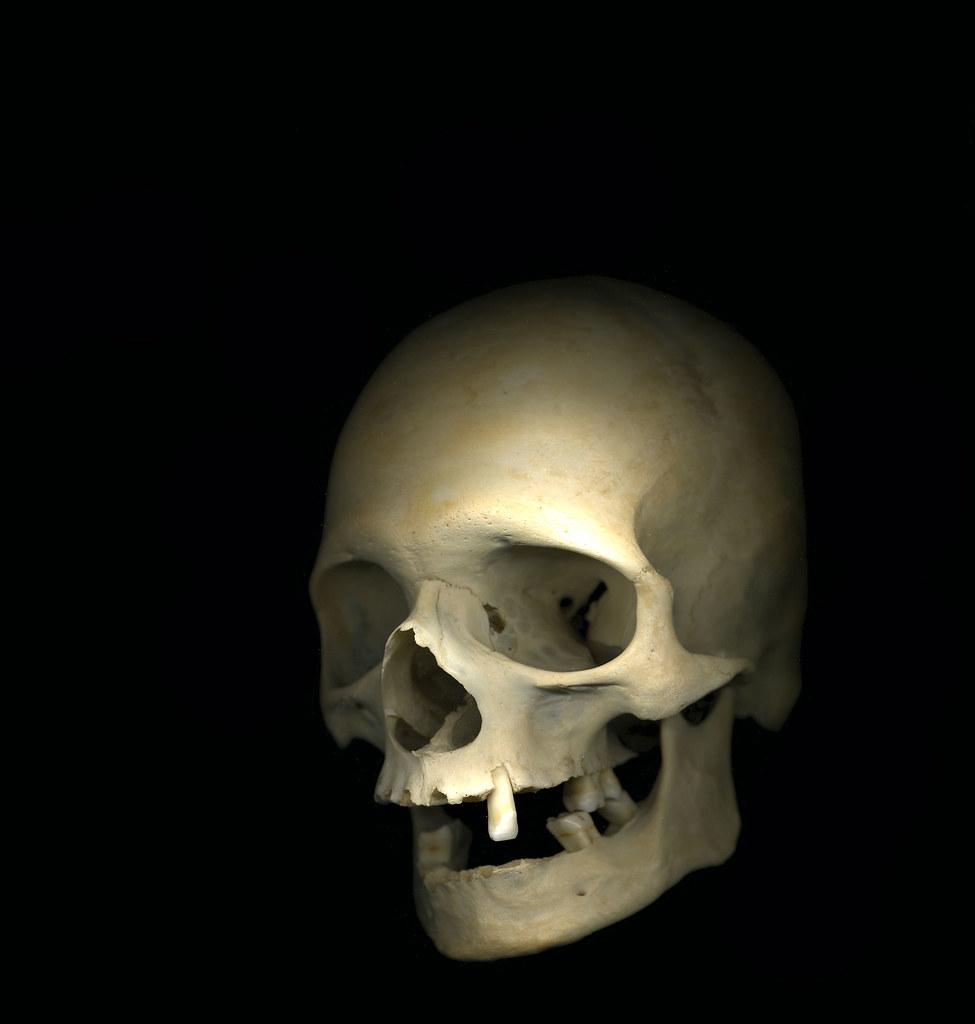 Human Skull Front Medical Skull Specimen Not Sure Of Age Flickr