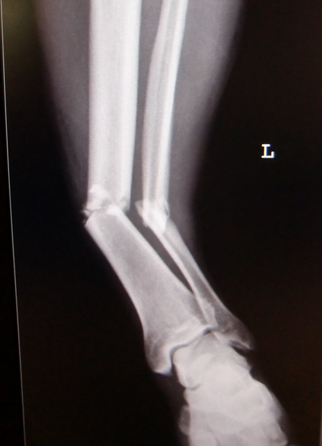Tibia and fibula fracture / Unterschenkelfraktur | Flickr ...