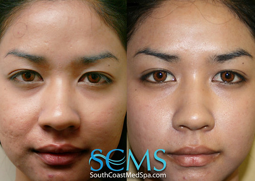 Does Mederma Work On Acne Scars Does Mederma Work Agnus Castus